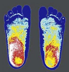 浮き指の子供の足