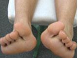 中学3年生女子浮き指と外反母趾